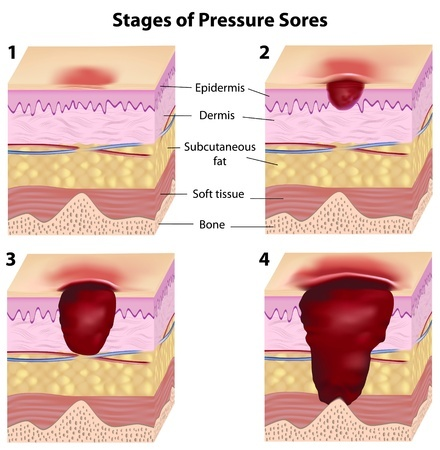 pressure ulcer stage illustration
