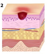 pressure ulcer stage 2 illustration