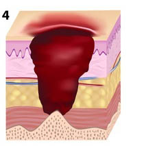 Pressure Ulcer stage 4 illustration